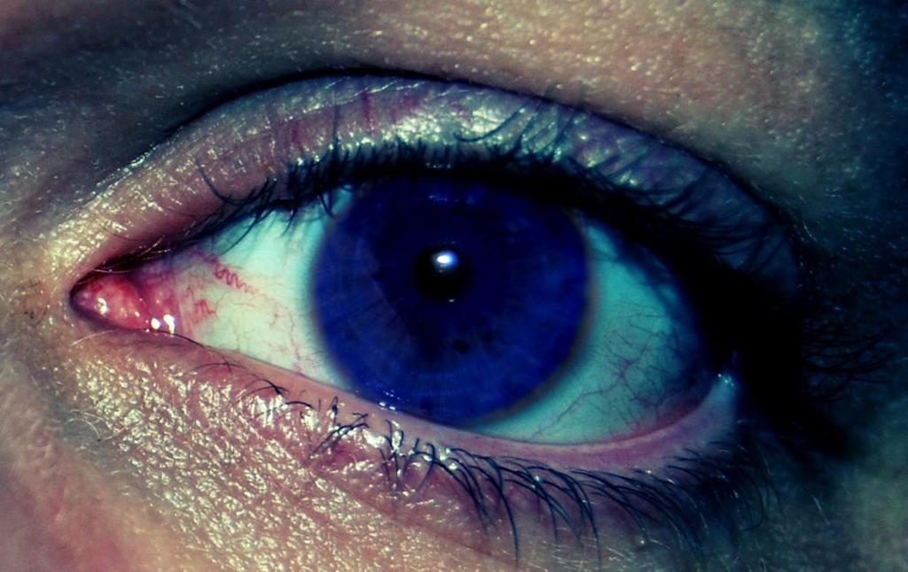 Les gouttes contre les oedèmes des oeil
