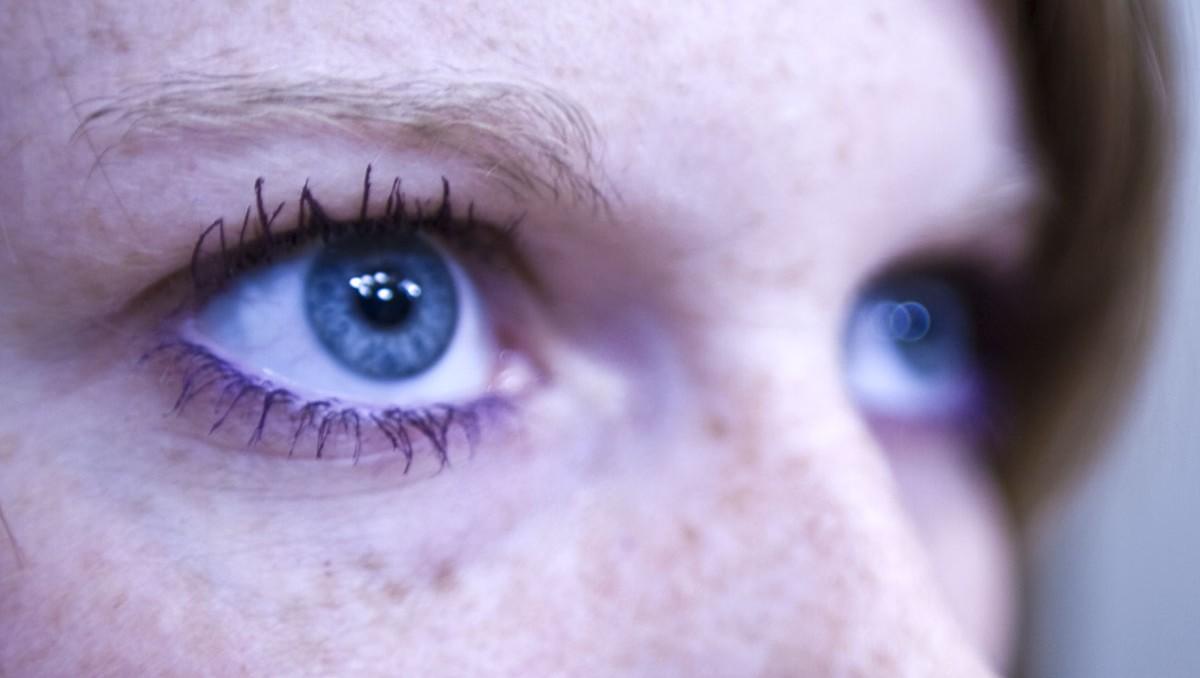Les oedèmes et la sécheresse sous les yeux