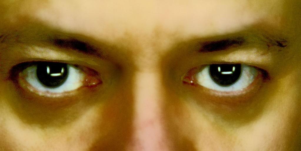 poches sous les yeux laser