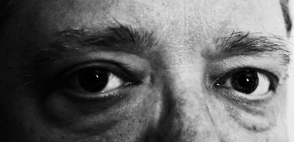 poches cernes sous les yeux